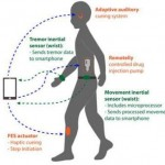 A belt with sensors and stimulators can facilitate the treatment of Parkinson